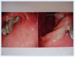 endoscopy-findings-tips2