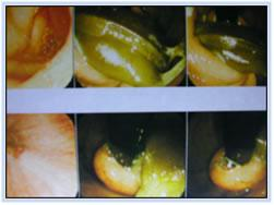 endoscopy-findings1